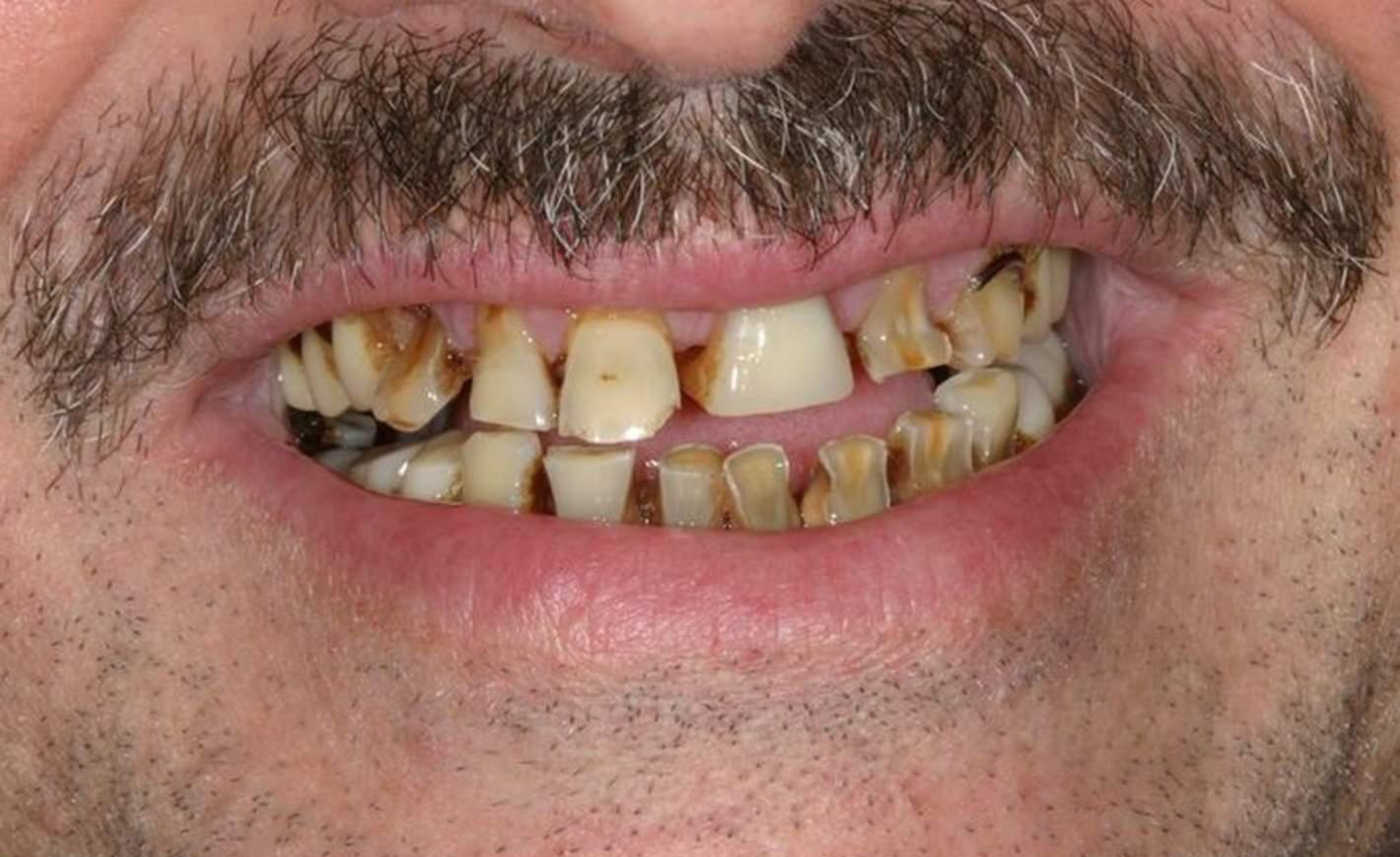 Ужасные зубы картинка